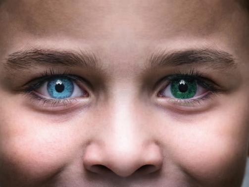 Heterochromia_faqs