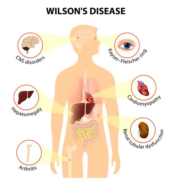 بیماری ویلسون یک ناهنجاری نادر ژنتیکی و ارثی می باشد که در آن مس(Copper) به مقدار زیاد در کبد، مغز و دیگر ارگانها تجمع می یابد و باعث بروز علائم این بیماری می شود.