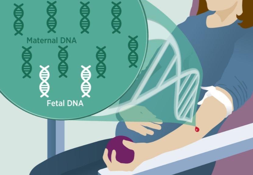 سندروم های داون، ادوارد وپاتو از اختلالات ژنتیکی هستند که به دلیل وجود رونوشت اضافه از یک کروموزوم خاص پدید می آیند و با نام تریزومی شناخته می شوند. سندروم داون که با اختلالات ذهنی و ناهنجاری های مادرزادی مشخص می شود، 1 در هر 700 مورد بارداری رخ می دهد که این میزان ریسک در مادران بالای 35 سال افزایش می یابد. سندروم های ادوارد و پاتو کمتر متداول بوده و به ترتیب 1 از هر 3000 و 1 از هر 10000 بارداری را شامل می شوند. این سندروم ها با نقص قابل توجه هنگام تولد و ناهنجاری های شدید مادرزادی همراهند و تعداد کمی از نوزادان مبتلا به این اختلالات پس از سال اول تولد زنده می مانند.