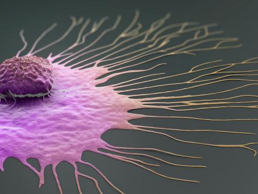 1920_migratingbreastcancercell