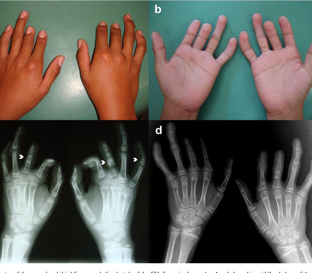 براکی داکتیلی (Brachydactyly) به کوتاه شدن غیر عادی استخوان های دست و پا که منجر به کوتاه شدن انگشتان می شود اطلاق می گردد. این یک بیماری ارثی است و در بیشتر موارد مشکلی برای فرد مبتلا ایجاد نمی کند. این وضعیت همچنین می تواند نشانه سایر اختلالات ژنتیکی باشد.