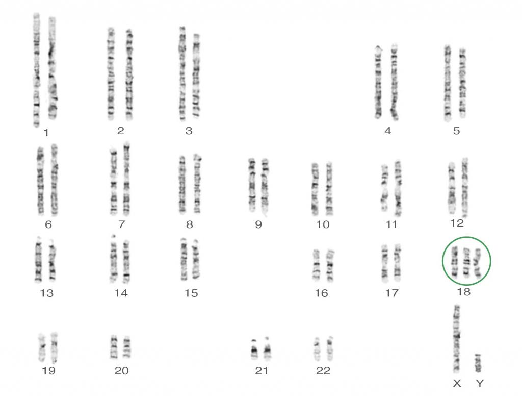 B9---Trisomy-18-Karyotype-47XY18
