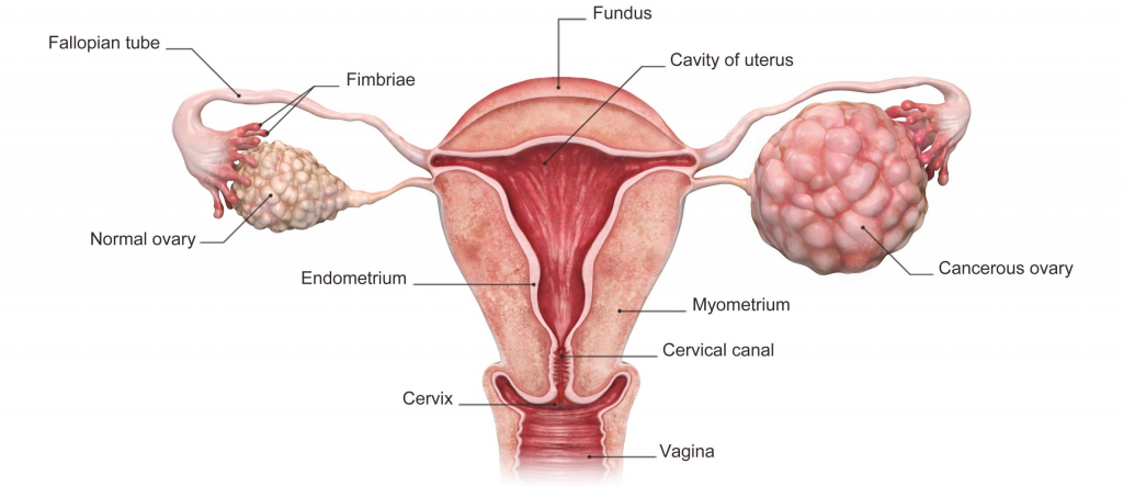 3d rendered illustration of the ovarian cancer.