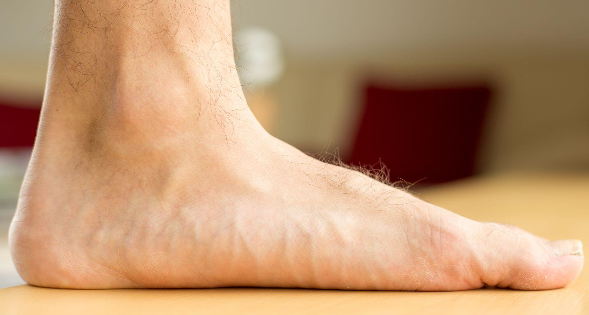 اگر پاهای صاف دارید ، هنگام ایستادن پاهای شما قوس معمولی ندارد. هنگامی که فعالیت بدنی زیادی انجام می دهید ، این می تواند باعث درد شود.