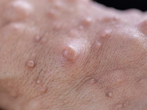 Neurofibromatosis.Tumors.Skin_G_946169138