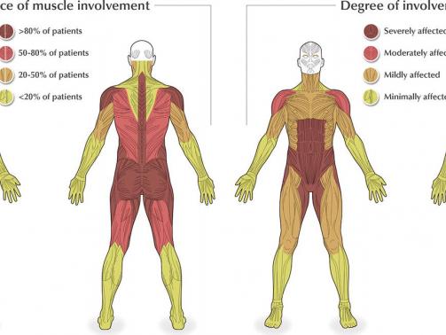 بیماری پمپه یک اختلال ژنتیکی نادراست که در آن بدن توانایی شکستن قندهای پیچیده (گلیکوژن) را ندارد که بروی بافت ها و ارگان ها مخصوصا عضلات اثر دارد. این بیماری نتیجه کمبود نقص یک آنزیم به نام گلوکوزیداز اسید آلفا که قندهای پیچیده را در بدن می شکند، می باشد. موتاسیون در ژن GAA که در روند شکستن گلیکوژن نقش دارد باعث این اختلال می گردد.