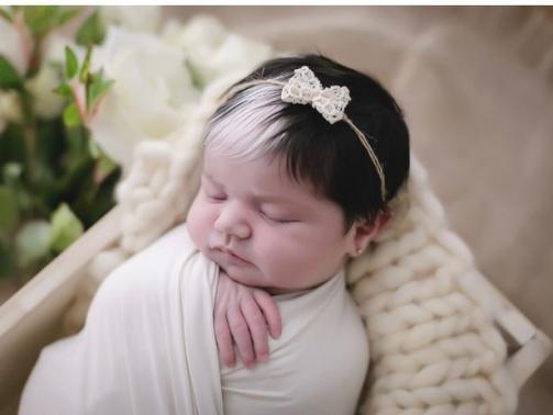 پیبالدیسم یک بیماری ژنتیکی است که معمولا در بدو تولد مشخص می شود، که در آن یک تکه بدون رنگدانه یا سفید در پوست یا مو مشاهده می شود.