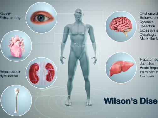 بیماری ویلسون یک بیماری ارثی نادرکه باعث انباشته شدن مس در کبد ،مغزو دیگر اندام های حیاتی شما میشود.بیشتر افراد مبتلا به بیماری ویلسون بین سنین 5تا 35سالگی تشخیص داده میشود،اما امکان دارد در افراد مسن و جوان تاثیر بگذارد.