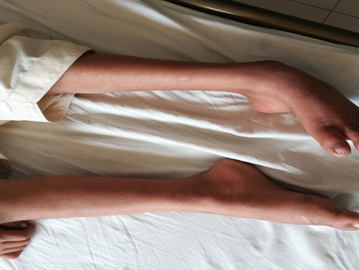 هنگامی که بیماری شارکوت ماری توث پیشرفت می کند، علاوم و نشانه ها ممکن است از پاها به سمت دست ها گسترش پیدا کند. شدت علائم می تواند از فردی به فرد دیگر بسیار متغیر باشد حتی در میان اعضای یک خانواده متفاوت گزارش گردد.