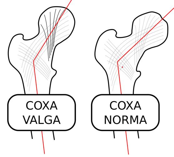 به تغییر شکل (بد شکلی) قسمت فوقانی ران که در قسمت داخلی لگن قرار می گیرد coxa Valga گفته می¬شود. تغییر شکل لگن به گونه ای است که در آن زاویه بین محور استخوان ران و سر استخوان ران بسیار زیاد می¬باشد. در اکثر افراد سر استخوان ران با تنه استخوان زاویه 120-130 درجه می سازد که در coxa valga این زاویه از 130 درجه بیشتر می¬شود.