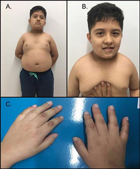 سندرم پرادر-ویلی یک بیماری ژنتیکی پیچیده است که قسمت های زیادی از بدن را درگیر می کند. در دوران نوزادی ، این اختلال با ضعف عضلانی (هیپوتونی) ، مشکلات تغذیه ، رشد ضعیف و تاخیر در رشد مشخص می شود