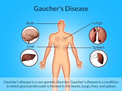 gauchers-disease