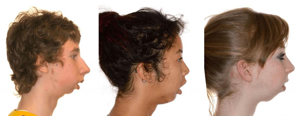 micrognathia شرایطی است که در آن فک پایینی کوچک تر از حالت معمول می¬باشد. این حالت یکی از علایم انواع craniofacial condition است. گاهی به نام mandibular hypoplasia نامیده می¬شود. میکرونیشن ممکن است در نحوه غذا خوردن و نفس کشیدن کودک دخالت داشته باشد.