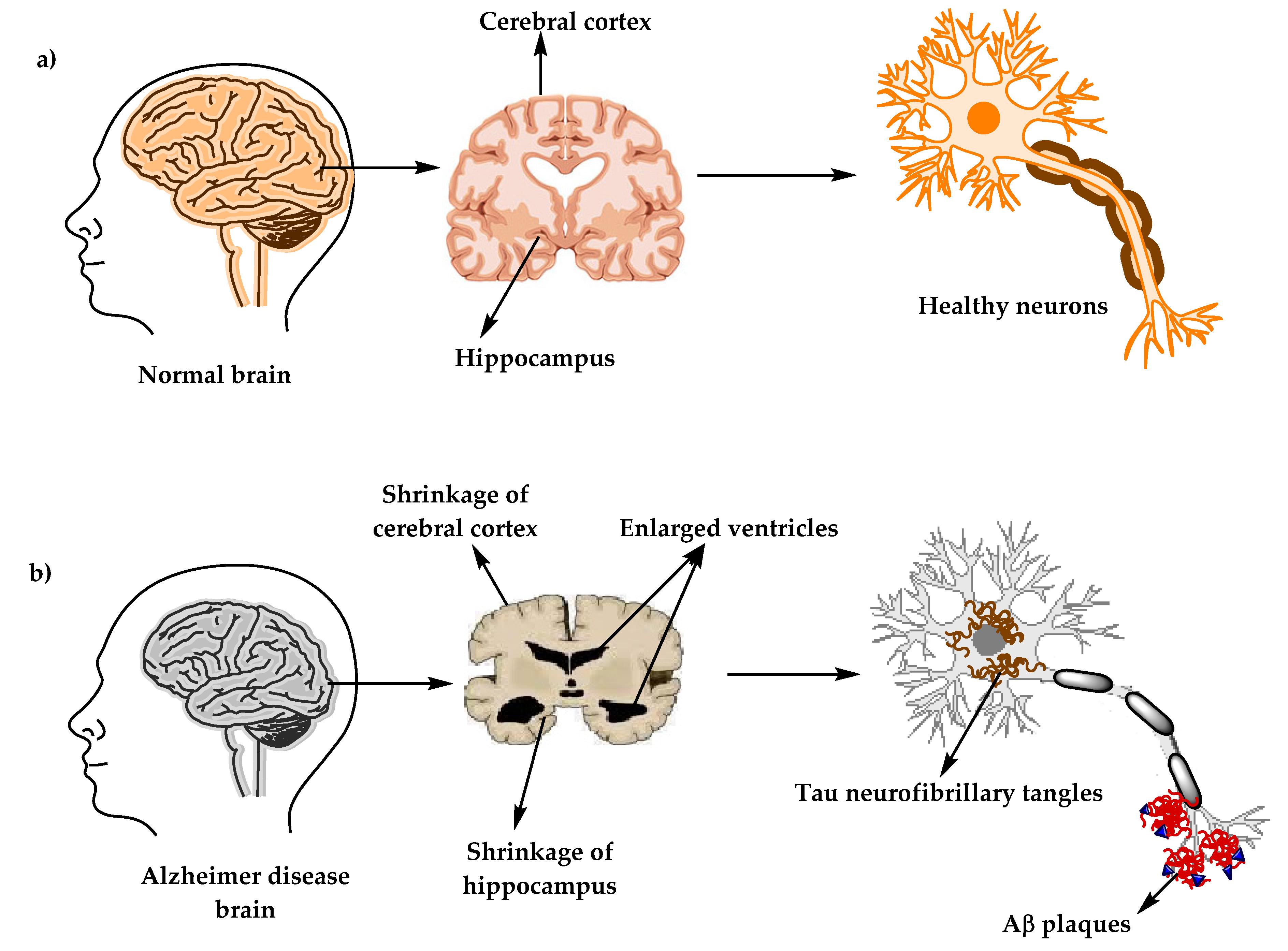 بیماری آلزایمر یک اختلال عصبی پیشرونده است که باعث کوچک شدن مغز (آتروفی) و مرگ سلول های مغزی می گردد. بیماری آلزایمر شایع ترین علت زوال عقل است و کاهش مداوم مهارت های تفکر، مهارت های رفتاری و اجتماعی که بر توانایی فرد برای عملکرد مستقل تأثیر می گذارد را در بر دارد.