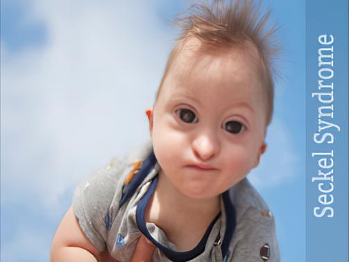 سندرم سکل جز اختلالات ارثی شدیدا نادر است که با تاخیر رشد در زمان قبل از تولد که نتیجه آن وزن کم در زمان تولد است، هویدا می شود. تاخیر رشد بعد از تولد نیز ادامه پیدا می کند و باعث کوتاهی قد یا دوارفیسم می گردد.