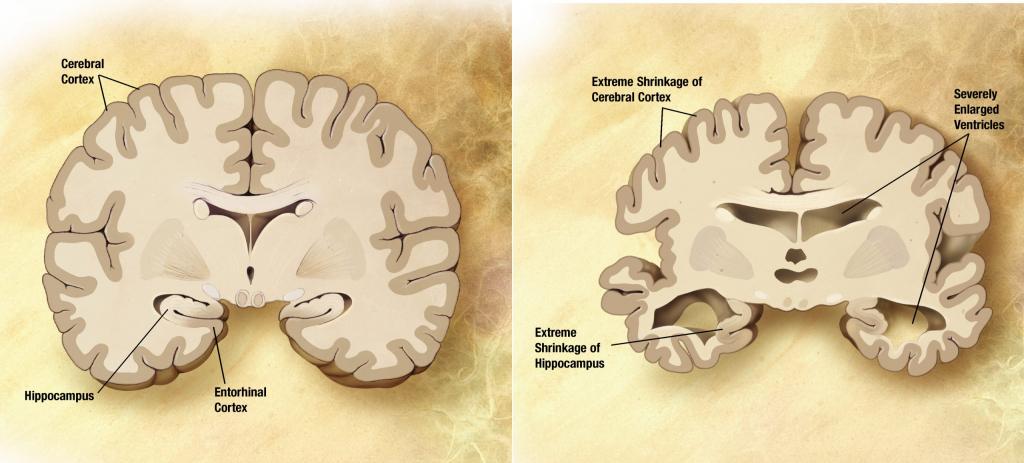 بیماری آلزایمر یک اختلال عصبی پیشرونده است که باعث کوچک شدن مغز (آتروفی) و مرگ سلول های مغزی می گردد. بیماری آلزایمر شایع ترین علت زوال عقل است