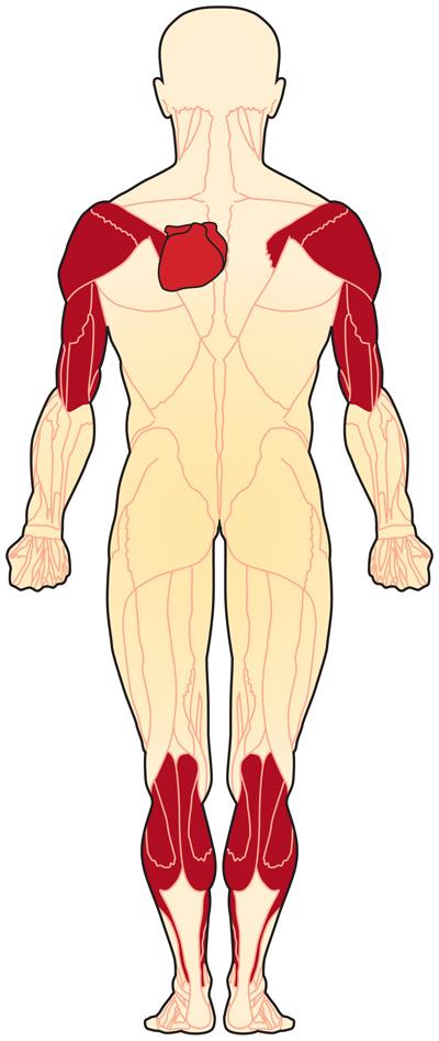 (EDMD) به یک گروه از اختلال های ماهیچه ای ژنتیکی کمیاب تحت عنوان دیستروفی عضلانی تعلق میگیرد. مشخصه ی این اختلالات ضعف و آتروفی در ماهیچه های مختلف بدن می باشد. تقریبا 30 اختلال متفاوت دیستروفی عضلانی معرفی شده است. این اختلالات در ماهیچه های متفاوت و سن متفاوت و الگوی توارث و وخامت متفاوتی دارند.