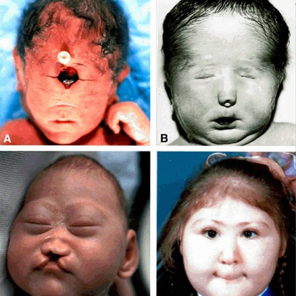 هولوپروزنسفالی همچنین می تواند در برخی از سندرم های ژنتیکی رخ دهد که در آنها مسائل پزشکی دیگری به غیر از موارد ذکر شده در این گزارش وجود دارد که علاوه بر مغز و صورت بر اندام ها نیز تأثیر می گذارد (به عنوان مثال ، سندرم اسمیت-لملی-اوپیتز).علیرغم درک فوق از علل هولوپروزنسفالی ، علت دقیق این بیماری برای بسیاری از افراد مشخص نشده است. به احتمال زیاد علل ژنتیکی دیگری به غیر از مواردی که قبلاً شناخته شده و در بالا ذکر شد وجود دارد.