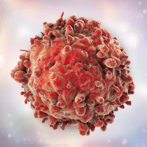 انواع مختلفی از سرطان لوسمی وجود دارد. برخی از انواع سرطان لوسمی در کودکان بیش¬تر دیده می شود. سایر اشکال سرطان لوسمی بیش¬تر در بزرگسالان دیده می شود. در افراد مبتلا به سرطان لوسمی، مغز استخوان مقدار زیادی گلبول سفید غیرطبیعی تولید می کند که عملکرد صحیحی ندارند.
