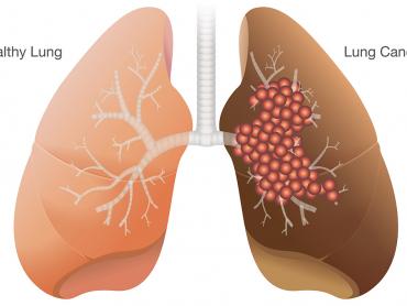 چندین عامل خطر می تواند شما را در معرض ابتلا به سرطان ریه قرار دهد. این عوامل به طور کلی با خطر ابتلا به سرطان ریه مرتبط هستند.