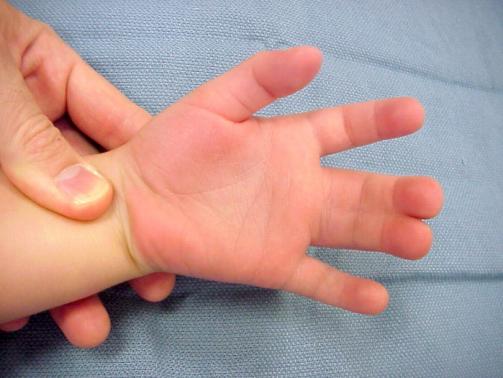 در این اختلال اتصال غیرنرمال دو انگشت را به هم مشاهده می کنیم و پیوستگی بین دو انگشت مخصوصا انگشت وسط و انگشت حلقه بسیار متداول است. همچنین می تواند بین انگشت شست و انگشت اشاره و یا هر دو انگشت دیگری هم اتفاق بیفتد. می تواند کل طول انگشت دچار اتصال گردد و یا می تواند فقط بخشی از طول انگشت را درگیر کرده باشد. می تواند فقط پوست و یا استخوان را هم درگیر کند.